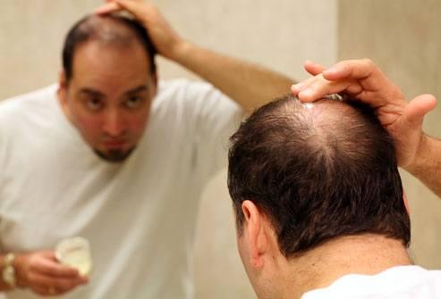 dau goi nam joia collagen ngăn ngừa rụng tóc, sạch gàu